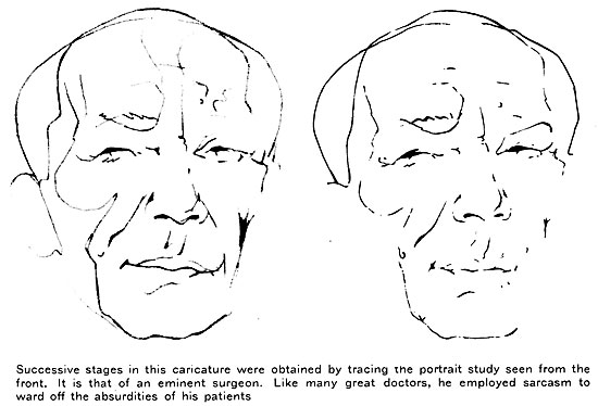 Successive stages in this caricature were obtained by tracing the portrait study seen from the front. It is that of an eminent surgeon. Like many great doctors, he employed sarcasm to ward off the absurdities of his patients.